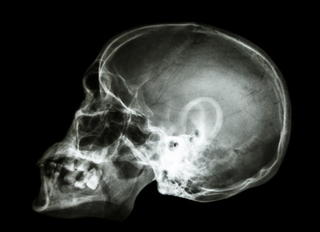 X-ray asian skull photo
