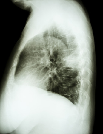 X-ray chest lateral of lung cancer patient photo