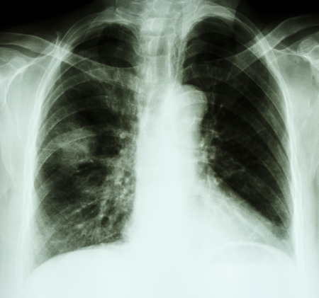 X-ray chest of lung cancer patient(opacity at right lung)