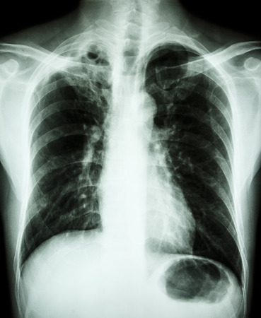 Pulmonary Tuberculosis  Film chest x-ray : cavity and interstitial infiltration at right upper lung due to Mycobacterium tuberculosis infection photo