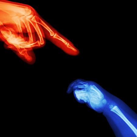 X-ray adult s hand point finger at upper side and baby s hand at lower side photo