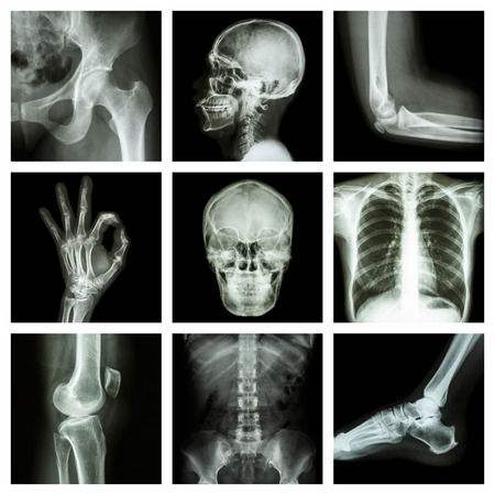 Collection X-ray part of human photo