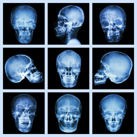 Collection of asian skull x-ray photo