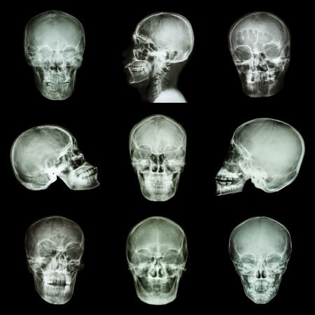 compile: Collection of asian skull