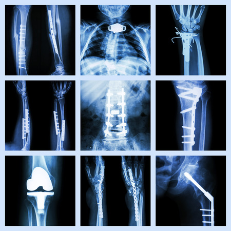 Collection of orthopedic operation x-ray photo