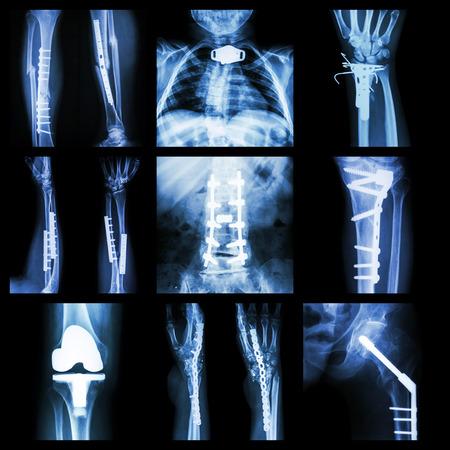 Collection of orthopedische operatie Stockfoto