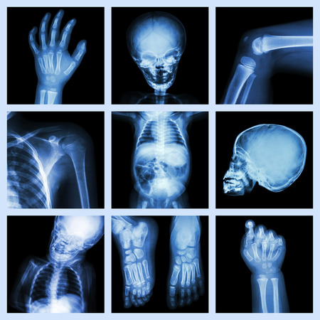 human body parts: Collection x-ray part of child body