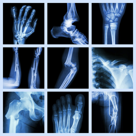 bone fracture: Collection of bone fracture Stock Photo