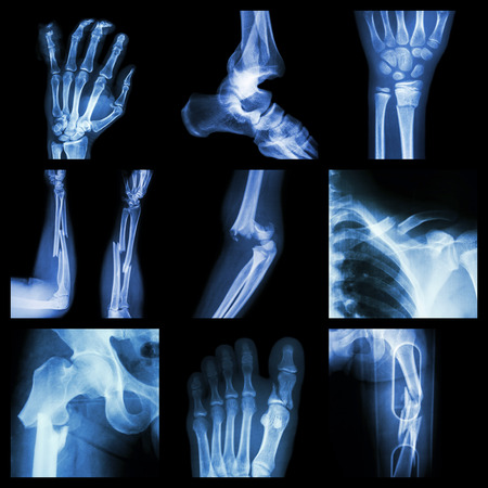mishap: Collection of bone fracture Stock Photo