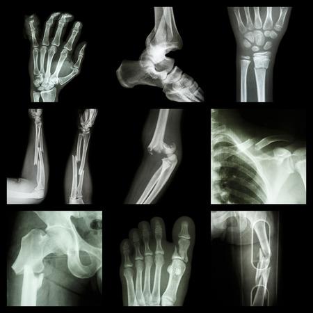 fractura: Colección de fractura ósea