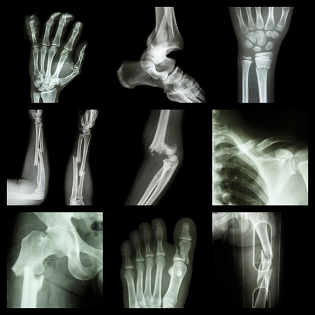 Collection of bone fracture photo
