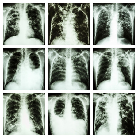 Collection of lung disease  Pulmonary tuberculosis,Pleural effusion,Bronchiectasis Stock Photo - 27700536