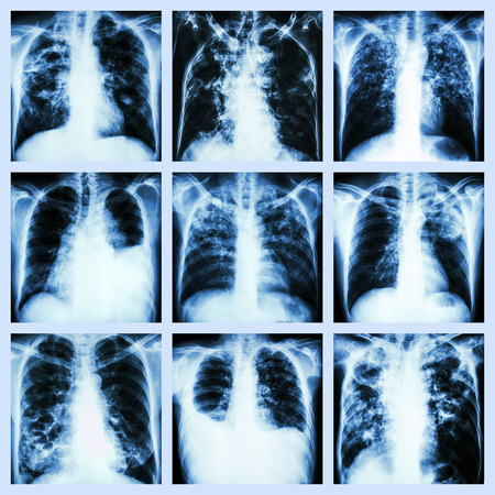 Collection of lung disease  Pulmonary tuberculosis,Pleural effusion,Bronchiectasis  Stock Photo - 27700537