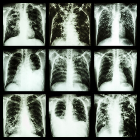 infiltration: Collection of lung disease (Pulmonary tuberculosis,Pleural effusion,Bronchiectasis)