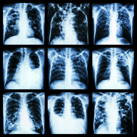 effusion: Collection of lung disease (Pulmonary tuberculosis,Pleural effusion,Bronchiectasis)