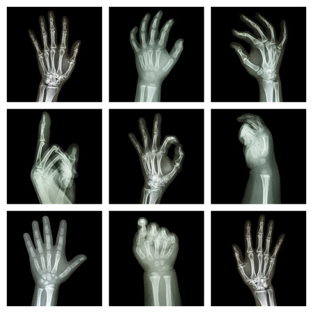Collection x-ray of hands photo