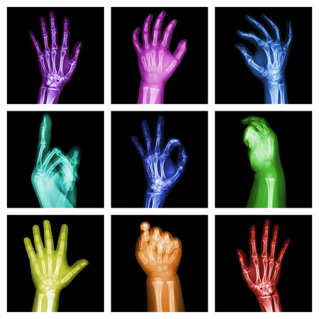 Collection of colorful x-ray hands photo