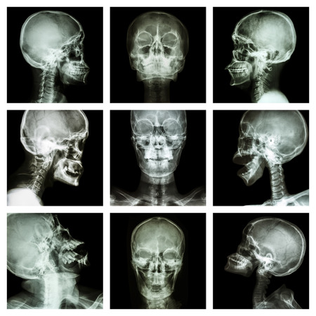 mishap: Collection of asian skull  Thai people