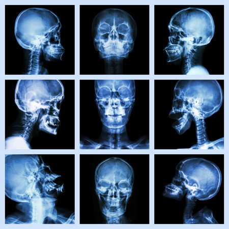 Collection of asian skull  Thai people  photo