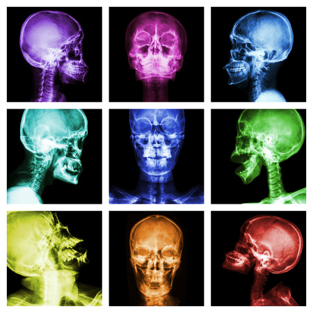 mishap: Collection of asian skull (Multicolor) Stock Photo