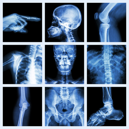 Collection of x-ray part of human  Version 2  photo