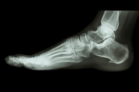 foot skeleton stock photos images. royalty free foot skeleton, Skeleton