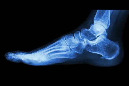 huesos humanos: Radiografía lateral normal del pie humano Foto de archivo