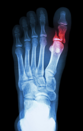film x-ray show fracture proximal phalange at first toe photo