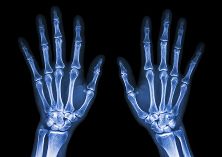 skeleton hand: film x-ray both hand AP : show normal human