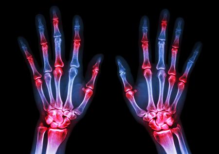 De rayos x película de dos manos humanas y la artritis en las articulaciones múltiples (Gout, reumatoide) Foto de archivo - 31797050