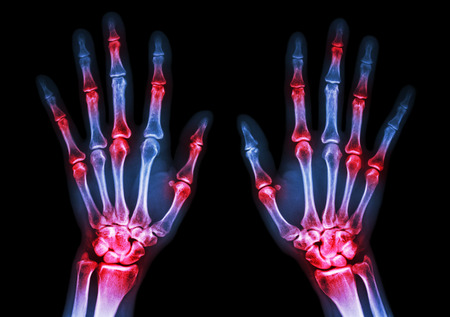 skeleton: film x-ray both human hands and arthritis at multiple joint (Gout,Rheumatoid)