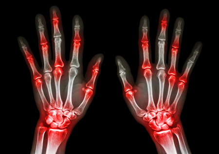 film x-ray both human hands and arthritis at multiple joint (Gout,Rheumatoid) photo