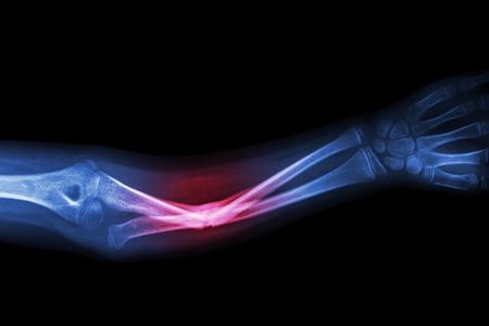 X-ray złamania kości łokciowej (kości przedramienia)