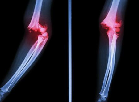 luxacion: De rayos X de cine espectáculo codo fractura supracondílea de húmero Foto de archivo