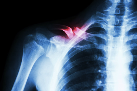 film x-ray right clavicle(collarbone) : show fracture right clavicle photo
