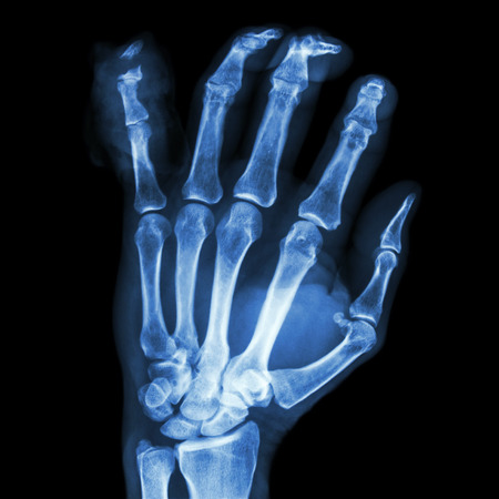 distal: fractura distal pharange me�ique