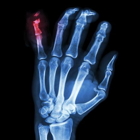 distal: film x-ray hand AP : show fracture distal pharange little finger Stock Photo