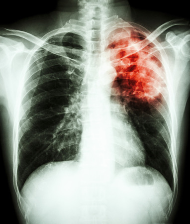 infiltration: film chest x-ray show alveolar infiltrate at left upper lung due to Mycobacterium tuberculosis infection (Pulmonary Tuberculosis)