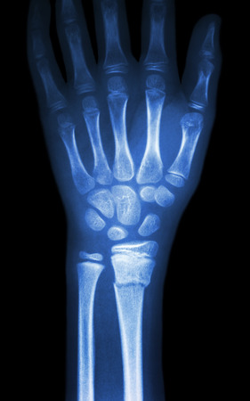 distal: radiograf�a fiilm espect�culo mu�eca fractura distal del radio (hueso del antebrazo)