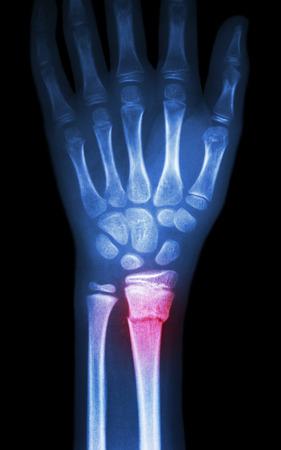 fiilm x-ray wrist show fracture distal radius (forearm bone)