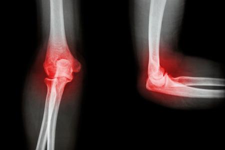 rheumatoid: Film X-ray elbow with arthritis (Rheumatoid,Gout) Stock Photo