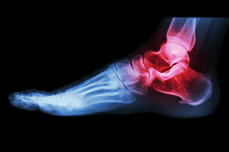 X-ray human s ankle with arthritis Stock Photo
