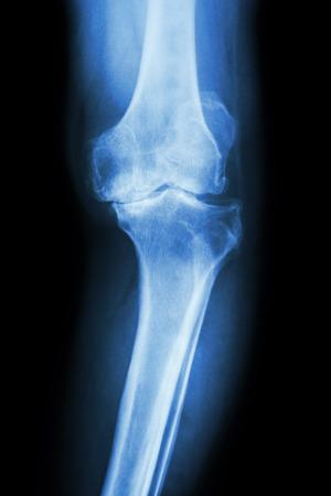 artrosis: película AP radiografía de la rodilla de la osteoartritis de la rodilla del paciente (rodilla OA)
