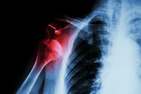 luxacion: De rayos X luxación anterior del hombro Foto de archivo