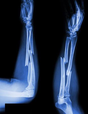 fracture arm: fracture shaft of radius & ulnar bone