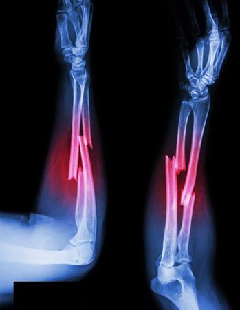 fracture shaft of radius & ulnar bone