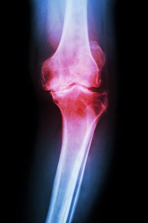 artrosis: película AP radiografía de la rodilla del paciente rodilla osteoartritis (OA de rodilla)