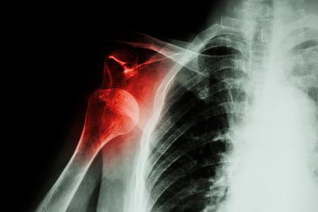 luxacion: De rayos X luxaci�n anterior del hombro Foto de archivo