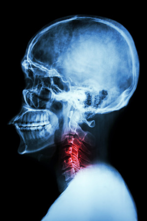 lateral: X-ray asian skull and cervical spine and neck pain