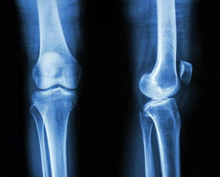 lateral: Film x-ray knee APlateral : show normal human